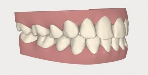Aligneur dentaire